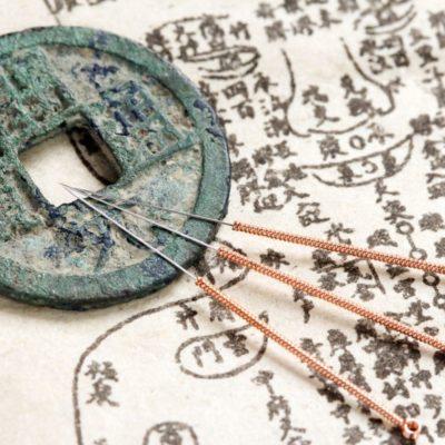 master in agopuntura e master in feng shui